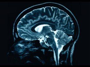 actividad-cerebral