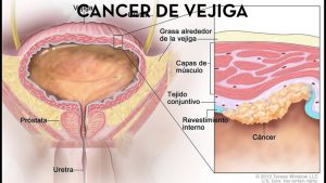 cancer-de-vejiga