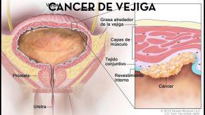 cancer-de-vejiga